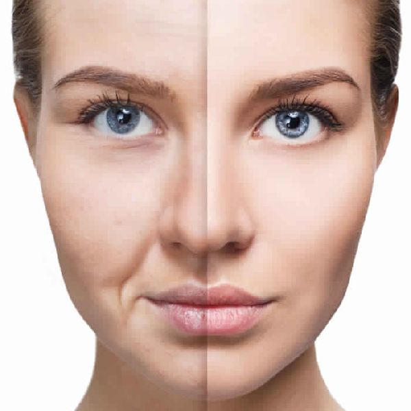 skin-tightening-treatment-services-1588412742-5406095